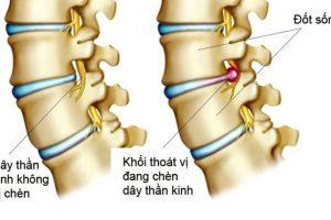 Tìm hiểu về các phương pháp phẫu thuật điều trị thoát vị đĩa đệm