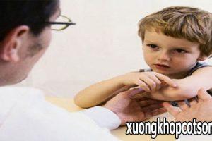 Viêm khớp dạng thấp ở trẻ em đang ngày càng tăng cao, bạn có biết?