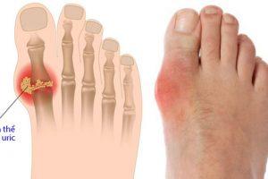 Các loại thuốc chữa bệnh gout tốt nhất hiện nay bạn có biết?