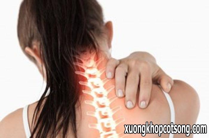 Cẩn trọng với những hội chứng bệnh thoái hóa cột sống cổ mang lại 1