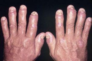 Sự ảnh hưởng của viêm khớp vẩy nến tới hệ xương khớp như thế nào?
