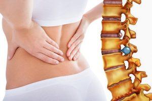 Vật lý trị liệu thoát vị đĩa đệm cột sống thắt lưng chi phí thấp hiệu quả cao