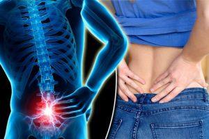 7 loại thực phẩm tốt cho người bị bệnh đau cột sống lưng