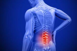 Triệu chứng đau thắt lưng là biểu hiện của bệnh gì?